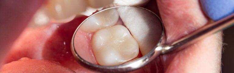 Descubre el empaste dental y sus utilidades