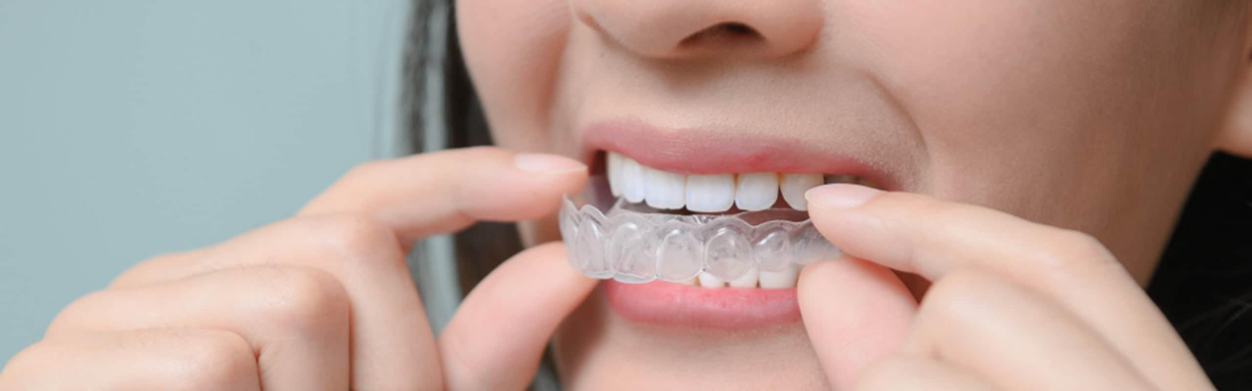 Descubre la ortodoncia invisible y sus ventajas